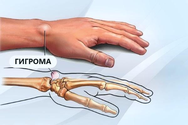 Гигрома - диагностика, лечение, профилактика. 13261.jpeg