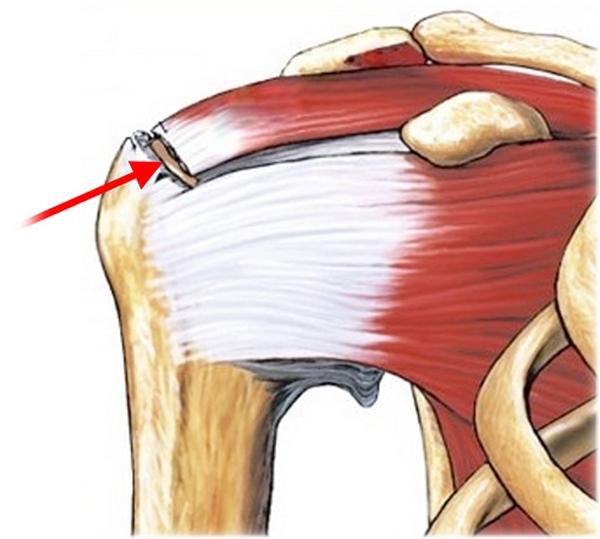 Разрыв ротаторной манжеты плеча: профилактика, клиническая картина, лечение и прогноз. 14388.jpeg