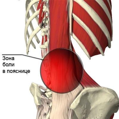 Специальные упражнения при болях в пояснице