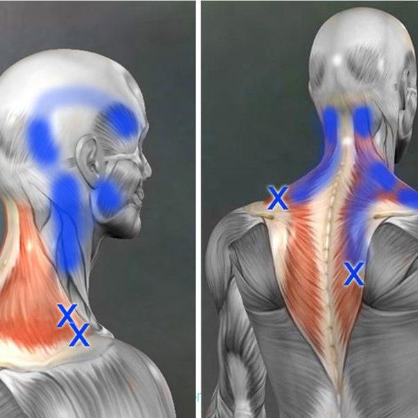 Причины мышечных болей и возникновения триггерных точек