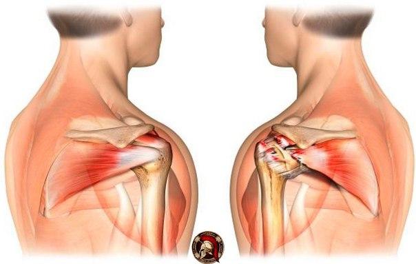 Как укрепить связки в плечевом суставе из за наркоты соль могут болеть суставы