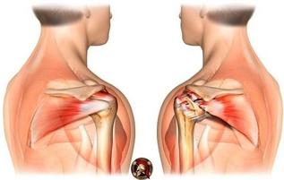 Как укрепить суставы и связки?