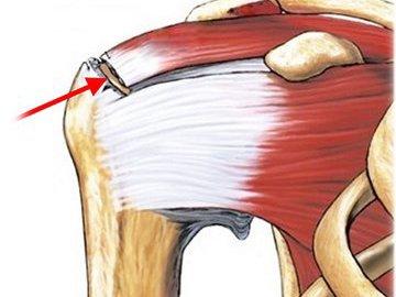 Разрыв ротаторной манжеты плеча: профилактика, клиническая картина, лечение и прогноз