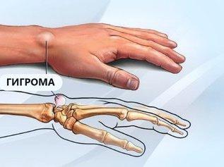 Гигрома - диагностика, лечение, профилактика