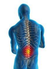 Тренировки с травмой спины